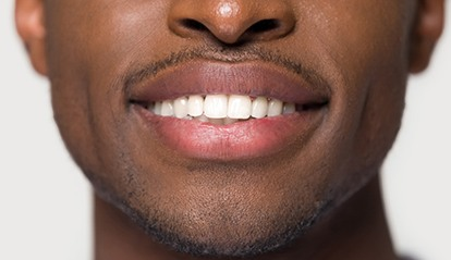 Closeup of smile improved with dental bonding in St. Albans