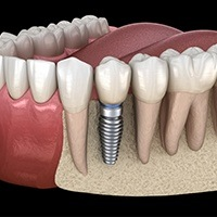 Animation of implant supported tooth
