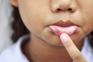 a child with a canker sore on their lip