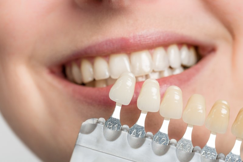 a dentist in St. Albans using a shade guide when determining the color of veneers